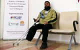 Prosthesis Support for the Amputee Patient Taha